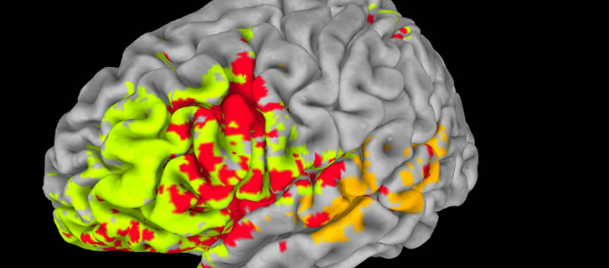 Researchers use Brain-Injury Data to Map Intelligence in the Brain